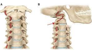 Уточнение кровотока в позвоночных артериях при движениях головы