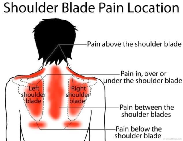 Какая причина боли в области лопатки