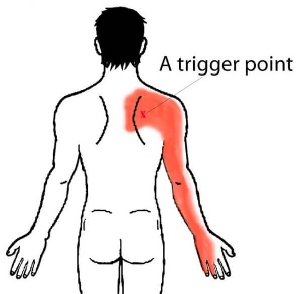 Боли по задней части спины и руке
