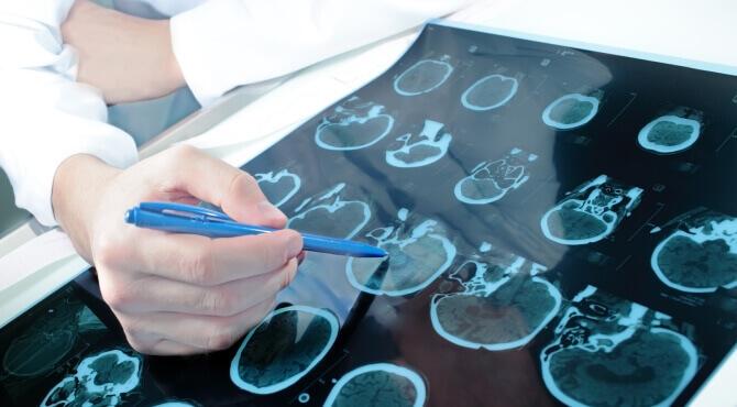 Методы лечения в неврологии