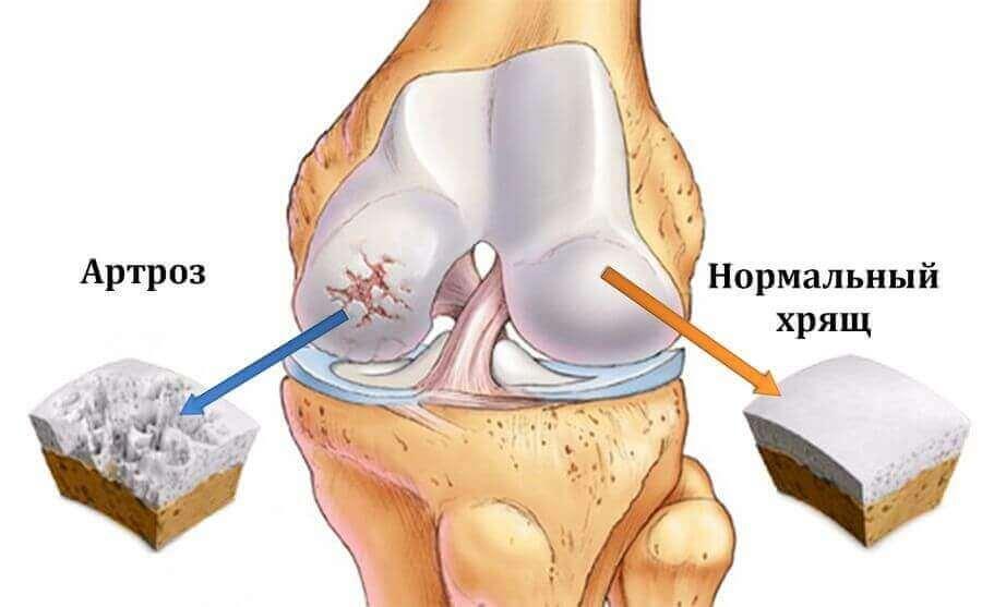 Лечение артроза суставов плазмотерапией