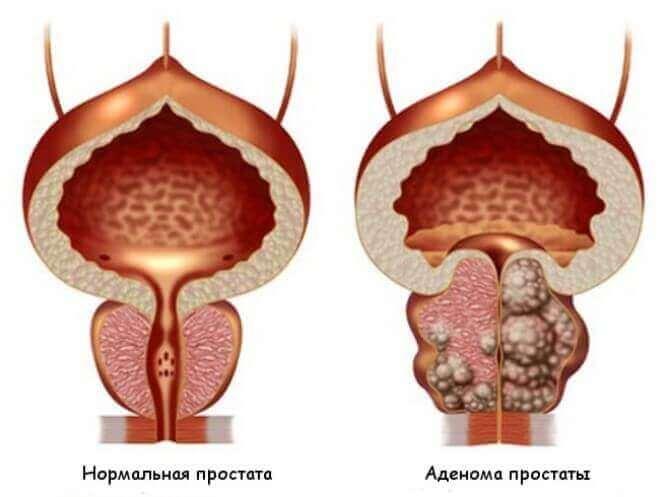 Предстательная железа (простата)