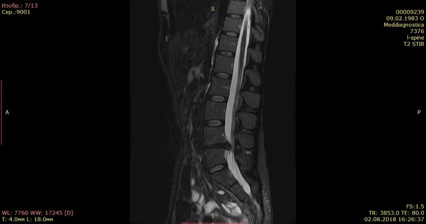 Грыжа диска на МРТ