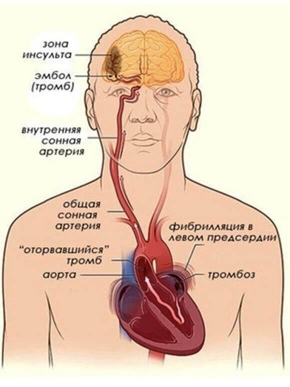 Діагностика та лікування мігрені в Києві