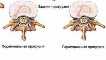 Лечение протрузии (грыжи) межпозвоночных дисков в Киеве