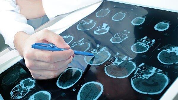 Старіння починається з судин мозку
