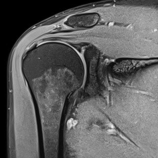 Как избежать операции на коленном суставе