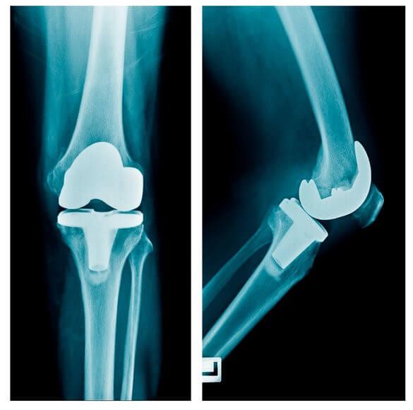 «Подводные камни» эндопротезирование коленного сустава