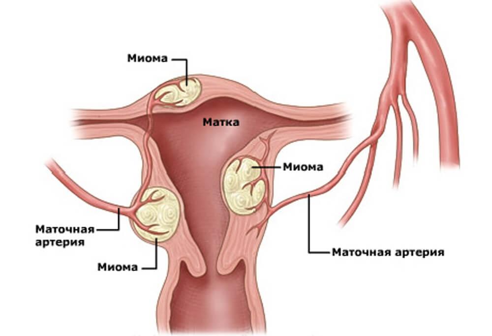 Міома матки лікування, симптоми, дігностіка