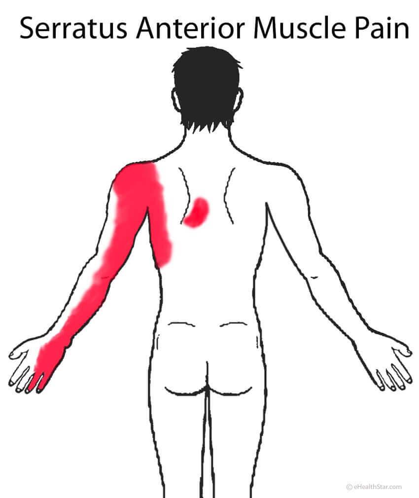 На рисунке видно топография боли: в только в боку, в плечевом суставе, в руке и доходит до мизинца
