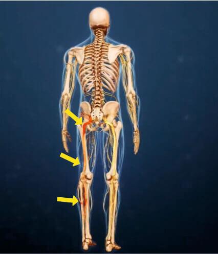 Как грыжа диска вызывает боль в ноге и боль в руке