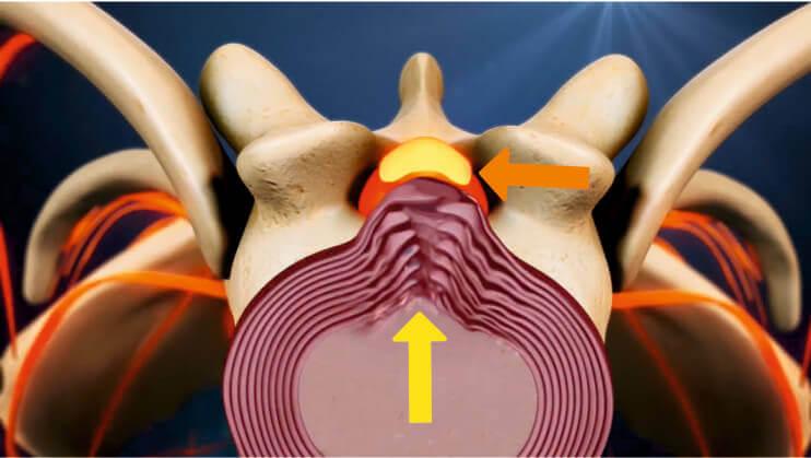 Большая грыжа диска грудного отдела позвоночника