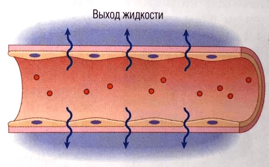 Сосуд растягивается, жидкость проникает в окружающие ткани