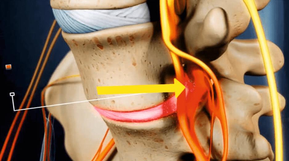 Радикулит: воспаление корешка при грыже диска