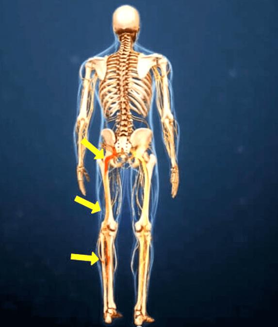 Боль в ноге: воспаление седалищного нерва