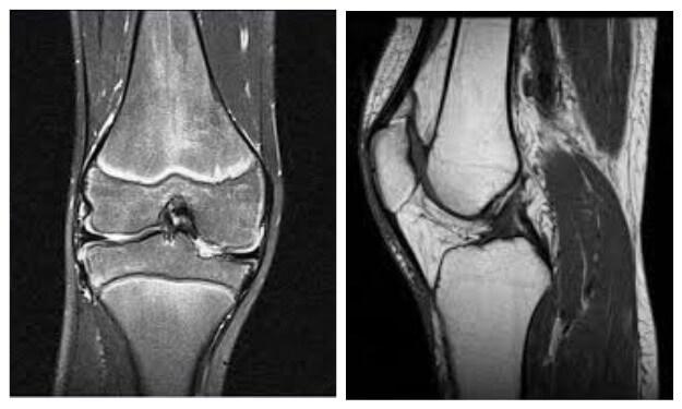 МРТ колінного суглоба